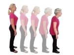 बढ़ती उम्र के साथ क्यों सिकुड़ने लगती है महिलाएं, जाने कारण