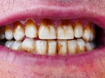 तम्बाकू खाने से खराब हो गए हैं दांत तो अजमाएं ये आसान से घरेलू उपाय