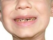दूध के दांत में लग गए कीड़े, पैरेंट्स इसे हल्के में ना लें
