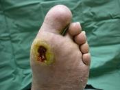 डायबिटीक पैर के घाव या चोट को न करें नजरअंदाज, बन सकता है घातक