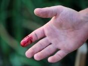 चोट लगने पर तुरंत खून रोकने के लिए अपनाएं ये 3 घरेलू उपाय