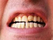 गुटखा खा-खाकर दांत हो गए है गंदे, इन उपायों से फिर से मोतियों सा चमकाएं