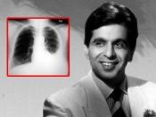 दिलीप कुमार को हुआ बाइलेटरल प्ल्यूरल इफ्यूजन, जानें इस बीमारी से जुड़ी हर बात