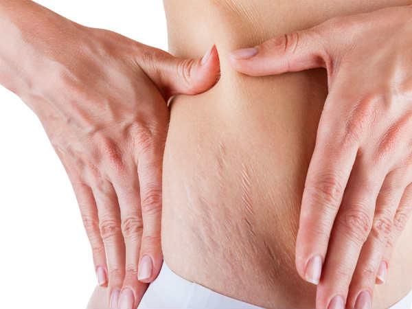 Ways To Hide Postnatal Stretch Marks