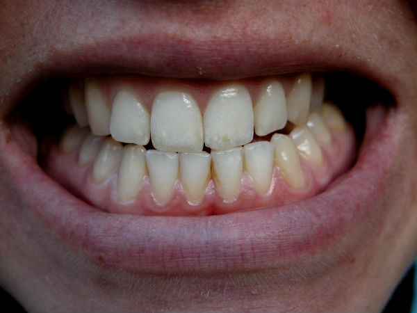 Bruxism: Do you grind your teeth when asleep?