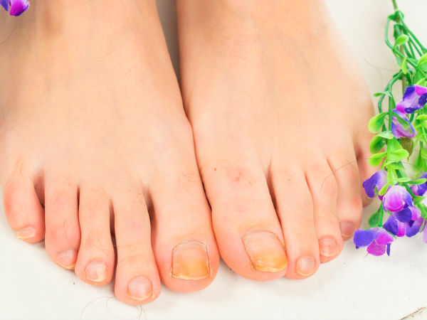Ways to treat toenail fungal infection
