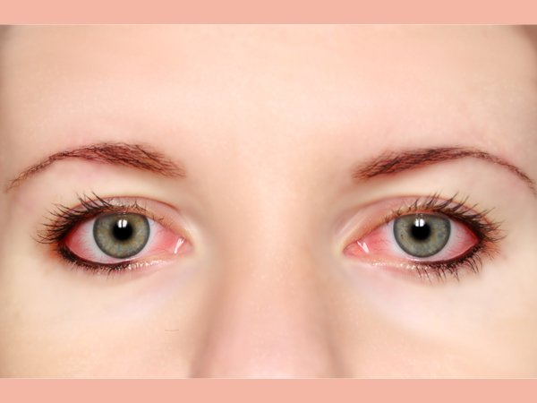 Allergic Conjunctivitis: Most Common Eye Problem