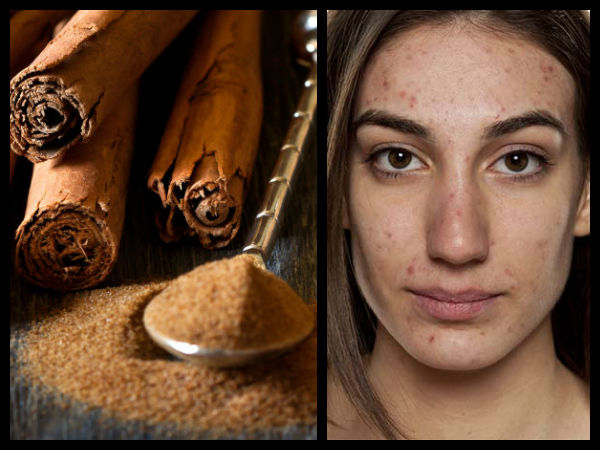 DIY Face Pack For Spots Using Cinnamon