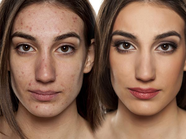 How To Cover Acne Spots Using Makeup