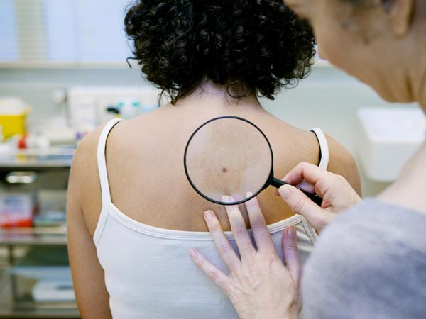 What Are The Signs Of Skin Cancer1