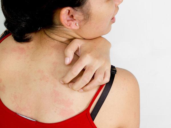 À¤ À¤²à¤•à¤° À¤ À¤¸ À¤• À¤¨ À¤• À¤¸à¤° À¤• À¤‡à¤¨ À¤¸ À¤• À¤¤ À¤• À¤¨ À¤•à¤° À¤¨à¤œà¤°à¤… À¤¦ À¤œ What Are The Signs Of Skin Cancer Hindi Boldsky