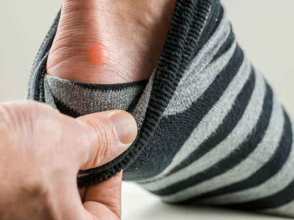 Amazing Ways To Treat Foot Blisters