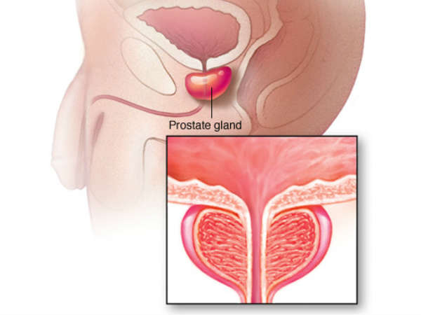 Prostate Cancer And Its Treatment 3