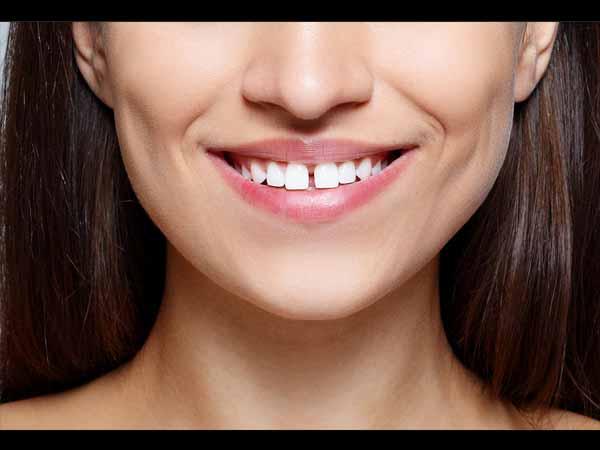 दांतों के बीच में गैप बना सकता है आपको भाग्यशाली, जानें कैसे