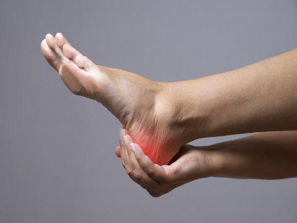 एड़ियों के दर्द से तुरंत आराम दिलाए ये प्राकृतिक उपचार
