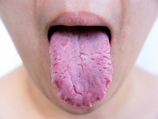 जीभ की सफाई नहीं की तो हो सकती हैं आपको ये बीमारियां
