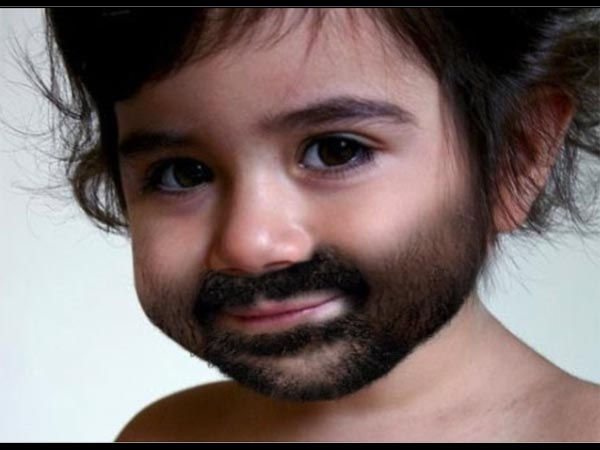 एक साल का बच्चा जिसके जननांग है पुरुषों की तरह विकसित