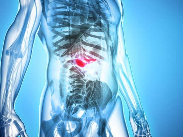 इन 8 लक्षणों से करें पैन्क्रीऐटिक कैंसर की पहचान