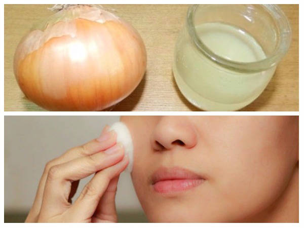 Surprising Benefits Of Onions (Pyaz) For Skin