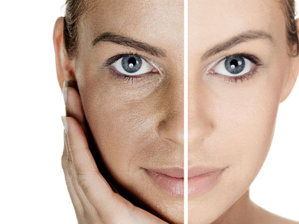 Chemical peels improve and smooth texture of your skin