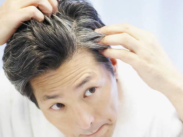 3) बालों को झड़ने से बचाता है