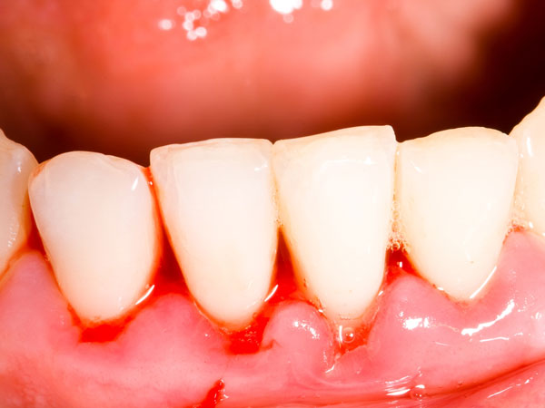 12) दांतों और मसूड़ों की मजबूती