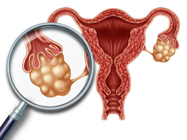 Natural Remedies For Ovarian Cysts in hindi