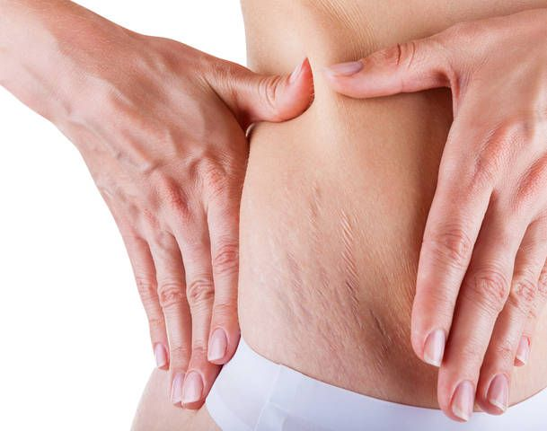 do stretch mark creams work during pregnancy