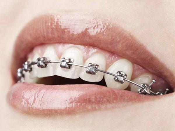 टेढ़े दातों को घर में सीधा कैसे करें, तार डलवाने से आपकी खूबसूरती हो जाती है भद्दी