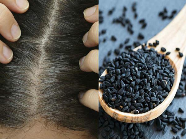 गंजापन और सफेद बालों का अचूक इलाज है कलौंजी