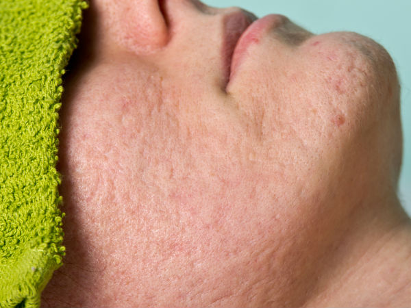 Reduce the Size of Large Pores with These 8 Natural Treatments