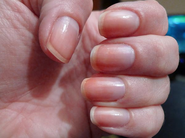 remedies for yellow nails