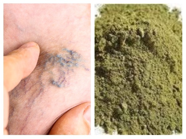 Natural Treatment for Blocked Veins
