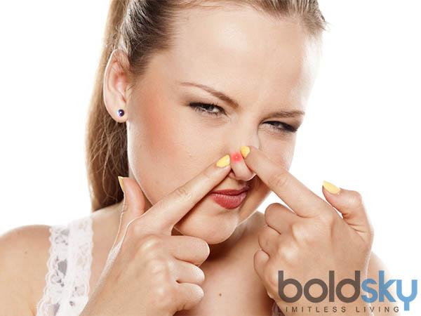 पीरियड के दौरान होने वाले मुंहासे से बचने के घरेलू उपाय