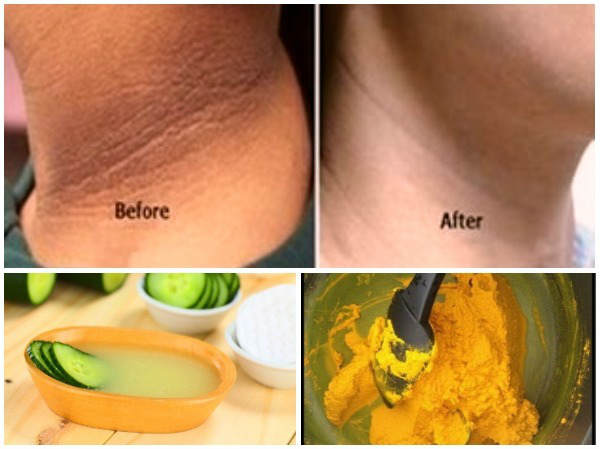 10 Effective Home Remedies To Get Rid Of A Dark Neck