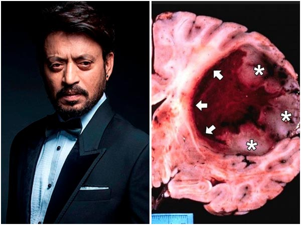 Irrfan Khan Sufferieng From Rare Disease Glioblastoma Multiforme (GBM)