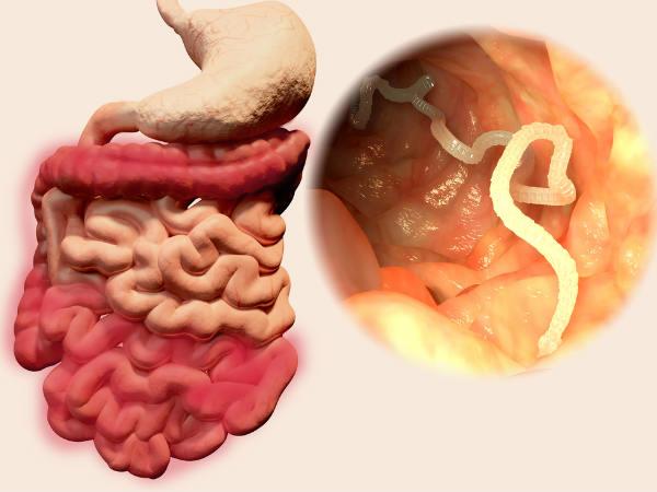 पेट में कीड़े हैं तो होगी अनेक बीमारियां, इन उपचारों से खतम करें इन्हें