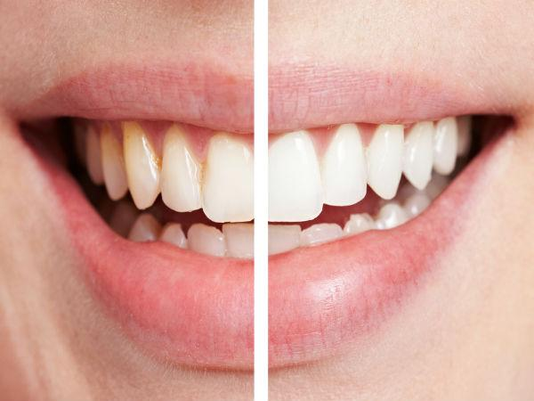 pros and cons of teeth whitening or bleaching