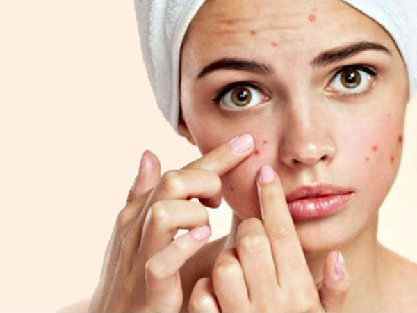 these acne mistakes youre making that can cause even more breakouts