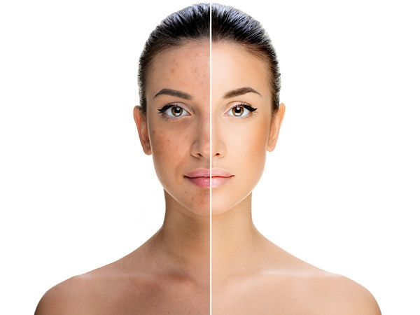 Effective Ways To Treat Pigmentation