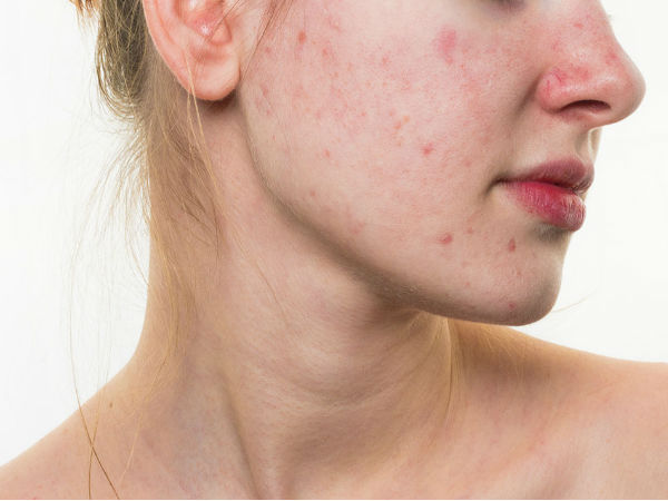How to Remove Holes Caused by Acne Scars