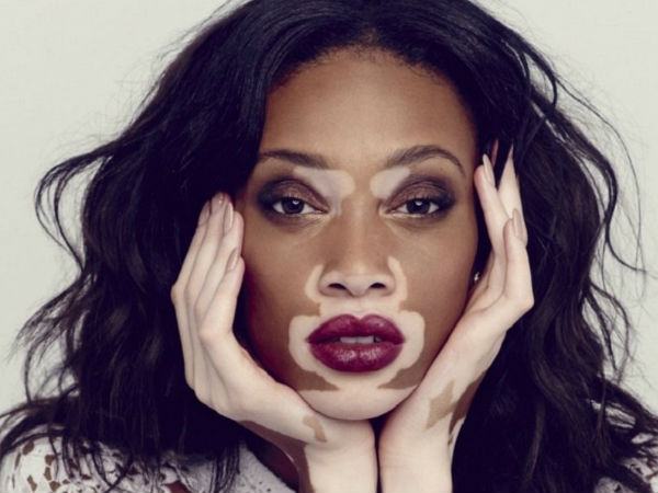 What is vitiligo, what causes it, symptoms and treatment