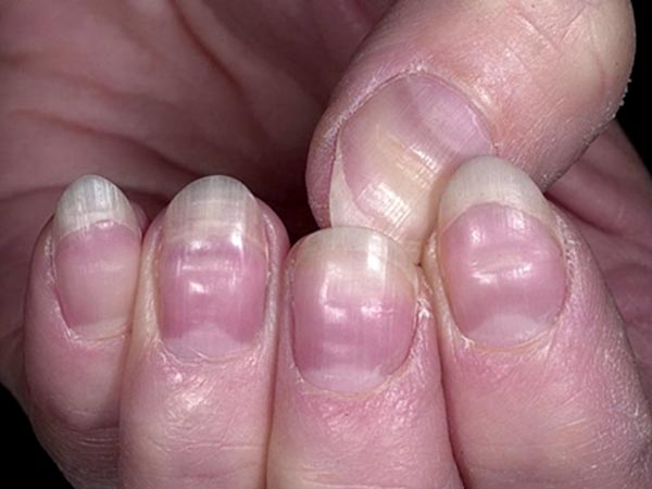 white spots on nails vitamin deficiency