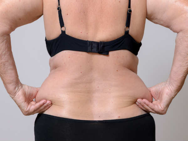 Belly Fat Dangers for Normal
