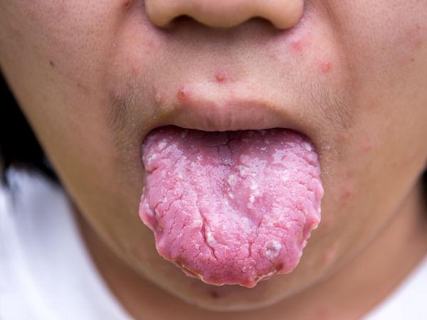 जीभ में बन गए धब्बे और आ रहा है खून, कहीं ये जीभ के कैंसर की निशानी तो नहीं!
