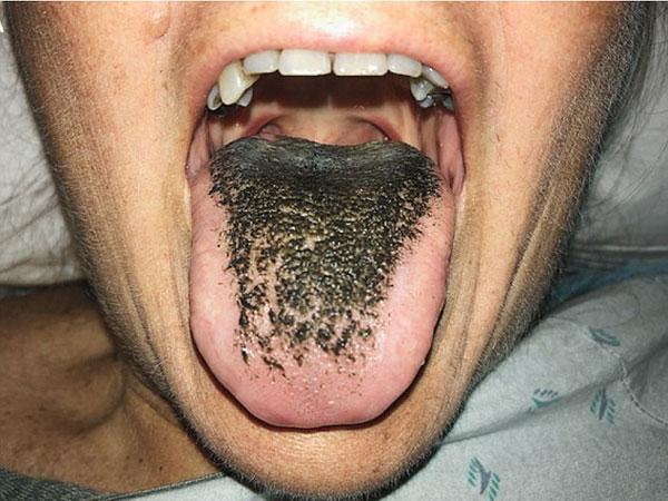 काली जुबान होना अपशकुन नहीं बल्कि एक बीमारी है, जानिए इसके कारण और बचाव