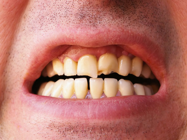 दांत में दिखने वाले सफेद व भूरे धब्बों को न करें इग्नोर, हो सकता है फ्लोरोसिस