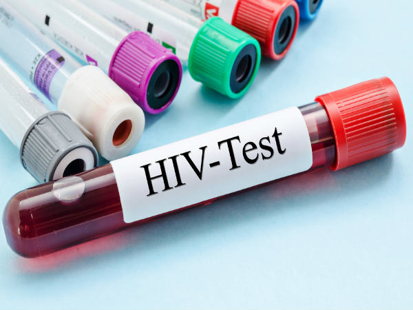 Goa looks at making HIV test must before marriage