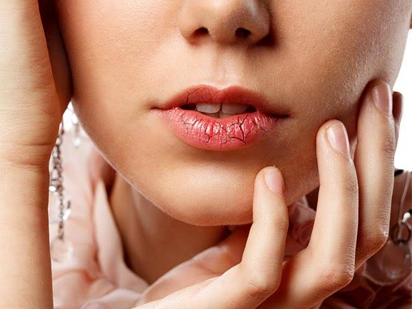Winter Care: How To Prevent And Treat Chapped Dry Lips