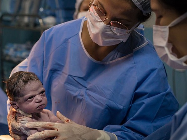 नवजात शिशु को जब डॉक्टर ने की रुलाने की कोशिश तो गुस्से से तमतमा गया बच्चा- वायरल हुई तस्वीर